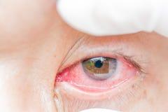 结膜炎和炎症在眼睛 免版税库存图片