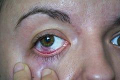 结膜炎或桃红色眼睛 免版税库存图片