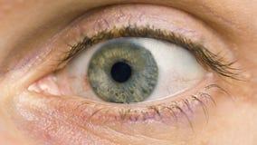 结膜炎红色眼睛宏指令  免版税库存图片