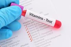 维生素测试 免版税库存照片