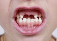 缺少嘴牙 免版税库存照片