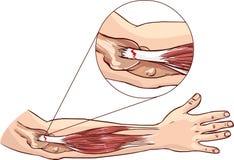网球肘-撕毁在胳膊的共同的伸张机腱 免版税库存图片