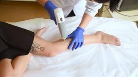 美容师去除在一个年轻俏丽的女孩的腿的纹身花刺与激光 股票录像