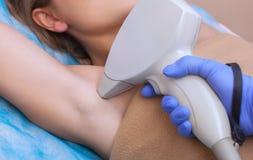 美容师在腋窝区域做激光头发移动程序 免版税图库摄影