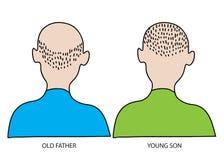 老和年轻人 头发丢失和光秃概念 免版税库存照片