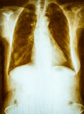 老和肮脏的影片胸部X光 库存照片