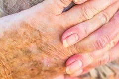 老妇人的手有皮肤问题的 免版税库存照片