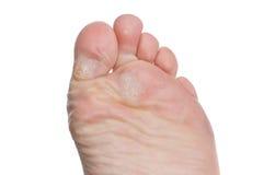 老茧脚趾 免版税库存图片