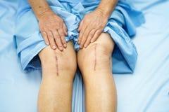 耐心亚裔资深或年长老妇人的妇女显示她伤痕外科总膝盖关节替换缝合创伤手术 免版税图库摄影