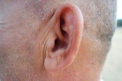 耳朵的健康侧视图 免版税库存照片