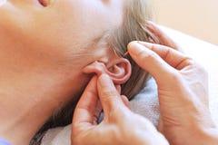 耳朵针灸 免版税图库摄影