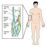肘前的窝静脉 免版税库存图片