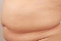 肚子胖子 免版税库存照片