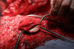 肚脐手术 免版税库存图片