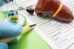 肝脏问题概念照片 医生在诊断过程中指向题字在医疗histo的板料的肝脏问题 免版税图库摄影
