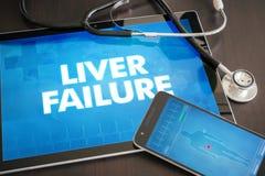 肝衰竭(相关的肝脏病)诊断医疗概念 免版税库存照片