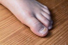 肠道病毒的作用对以损伤的形式身体对拇指 免版税库存图片