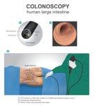 结肠镜检查 人的解剖学例证,传染媒介艺术 免版税库存照片