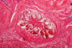 肠类圆虫寄生生物包虫granulosus造成的肝脏囊囊肿 图库摄影