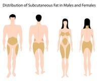 肥胖人力皮肤下 免版税库存图片
