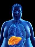 肥胖供以人员肝脏 向量例证