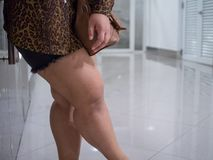 肥胖妇女亚洲大腿  她穿短裤和长袖衬衣看多于脂肪 免版税图库摄影