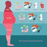 肥胖病人 程度肥胖病 也corel凹道例证向量 免版税库存图片