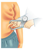 肥胖病 向量例证