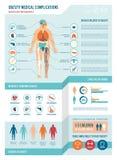 肥胖病infographics 库存例证