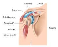 肩膀伯萨,滑囊炎 向量例证