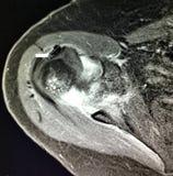 肩膀burcitis glenohumeral骨关节炎 库存图片