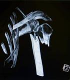 肩膀CT,肱骨破裂  图库摄影