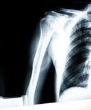 肩膀X-射线  免版税库存图片