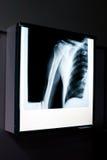 肩膀X-射线  免版税图库摄影