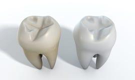 肮脏的干净的牙比较 免版税库存图片