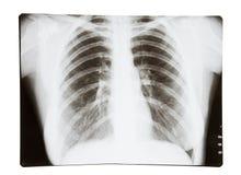 肺光芒x 免版税库存照片
