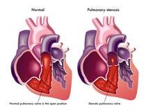 肺动脉瓣狭窄 库存图片
