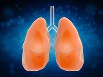 肺在痛苦中 图库摄影