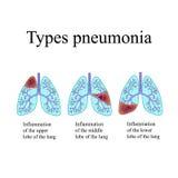肺炎 人的肺的解剖结构 肺炎的类型 在背景的传染媒介例证 库存图片