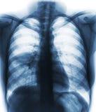 肺炎& x28;影片胸部X光展示齿龈音渗入在右中间肺& x29; 库存图片