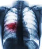 肺炎& x28;影片胸部X光展示齿龈音渗入在右中间肺& x29; 免版税库存照片