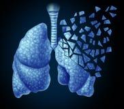肺病症 免版税库存图片