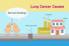 肺癌原因 免版税图库摄影
