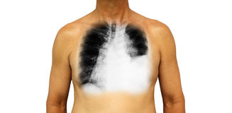 肺癌 人的胸口和X-射线显示留下的胸膜流出肺由于肺癌 免版税库存图片
