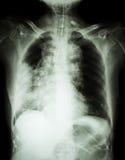 肺癌 影片胸部X光展示权利肺大量,宽纵隔、肺炎和权利胸膜流出 免版税库存照片
