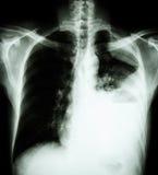 肺癌(挺直胸口PA影片的X-射线:显示胸膜流出在左肺由于肺癌) (2类型肺癌: 免版税库存图片