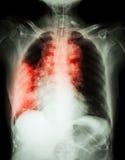 肺癌 免版税库存照片