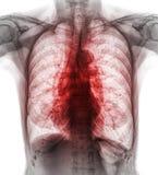 肺结核 影片胸部X光展示间隙植物渗入两肺由于结核杆菌传染 免版税图库摄影