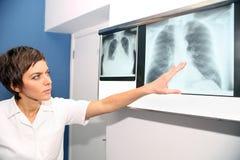 肺,肺embolismPE,肺高血压, C X-射线  免版税库存照片