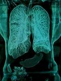 肺, CT 免版税库存图片